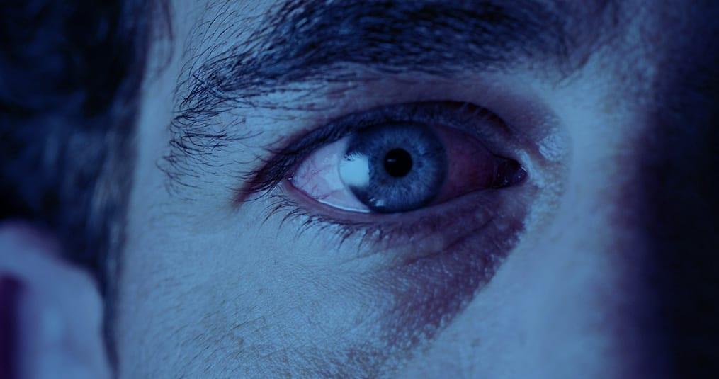 allergie rond de ogen