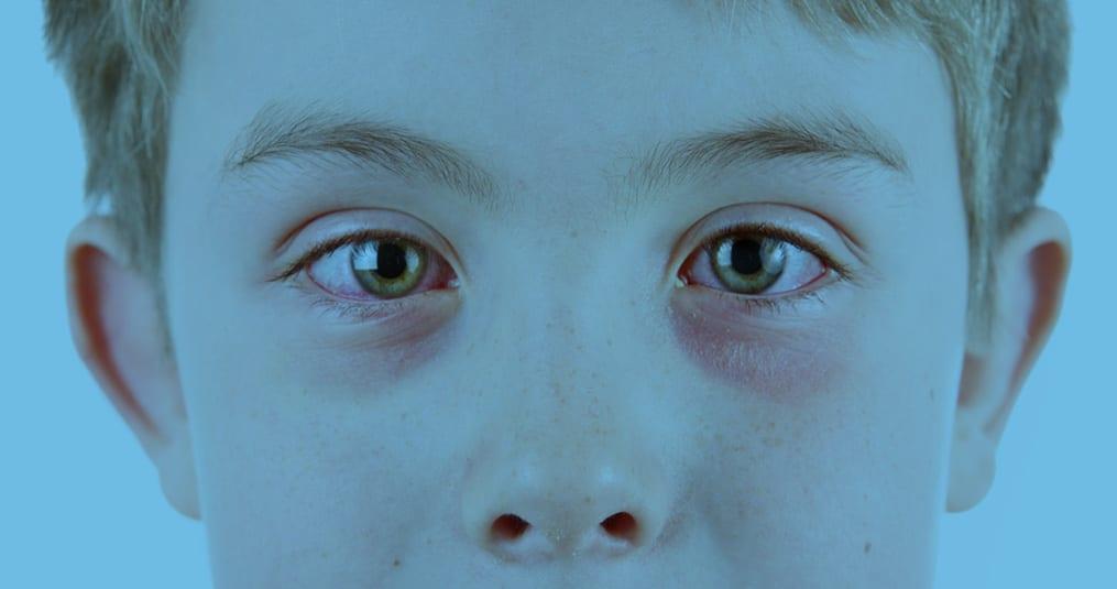 opgezwollen oogleden