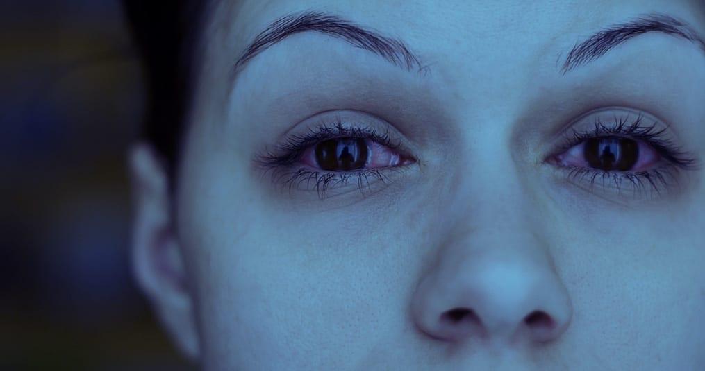 rode ogen door huisstofmijtallergie